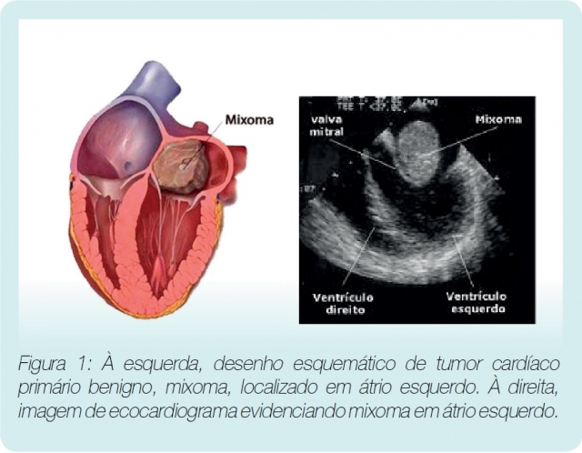 Existem tumores cardíacos?