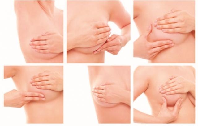 Entenda mais sobre o câncer de mama