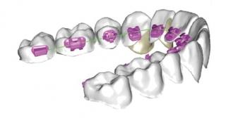 O aparelho lingual é fixado atrás dos dentes, uma alternativa para quem não deseja mostrar que está em tratamento ortodôntico.