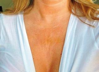 Colo do pescoço com manchas causadas pela exposição ao sol.