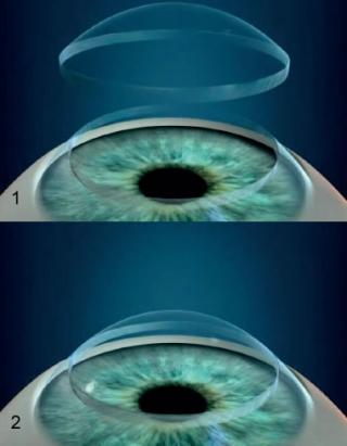 1- Transplante - retirada da córnea doente. 2- Transplante - colocação da córnea doada.