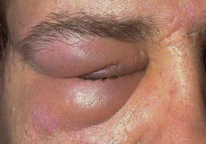 ANGIOEDEMA: inchaço nas extremidades. No exemplo, nota-se o expressivo aumento das pálpebras.