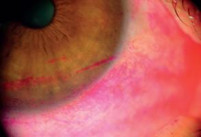 Olho seco moderado mostrando lesões das células epiteliais da córnea e conjuntiva coradas com Rosa Bengala.