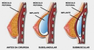 Músculo Peitoral