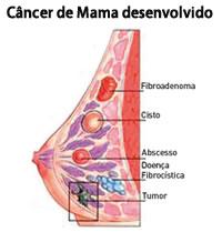 Câncer de mama desenvolvido