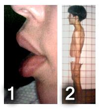 Foto 1: Lábios hipotônicos (moles) devido a dificuldade na respiração. Foto 2: Postura do pescoço para frente buscando o ar.