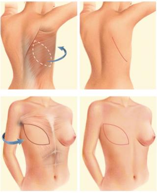 Parte do processo de reconstrução da mama.